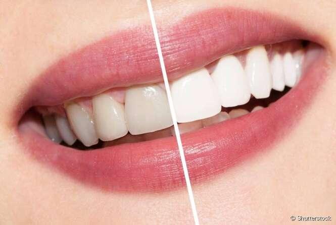 Aprenda a fazer um poderoso enxaguante bucal caseiro que clareia os dentes e acaba com tártaro e placa bacteriana