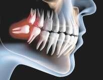 Saiba por que ter extraído os dentes do siso pode ter sido o maior erro que você já cometeu