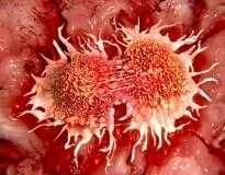 Segredo revelado: câncer é deficiência disto no organismo e não uma doença