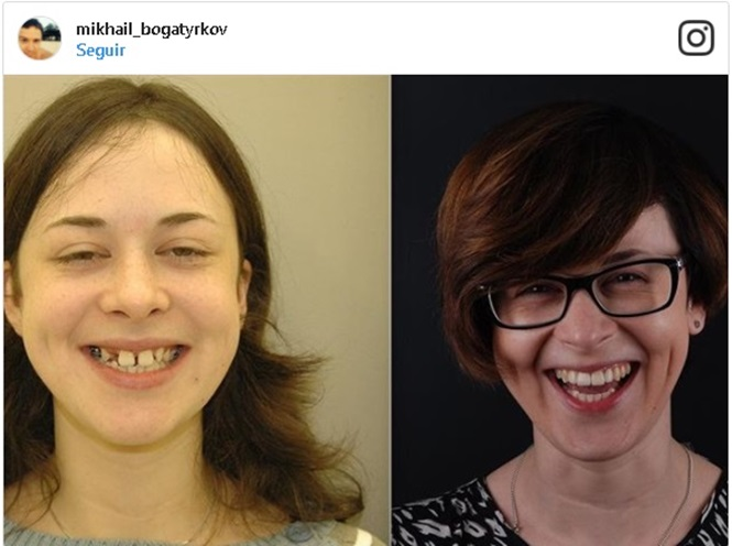 Imagens provando que um sorriso bonito muda tudo