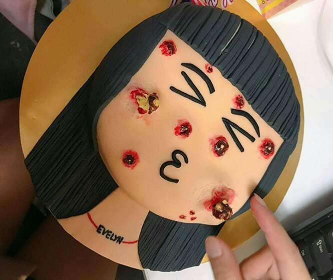 Confeitaria cria bolo com 'espinhas' que podem ser espremidas