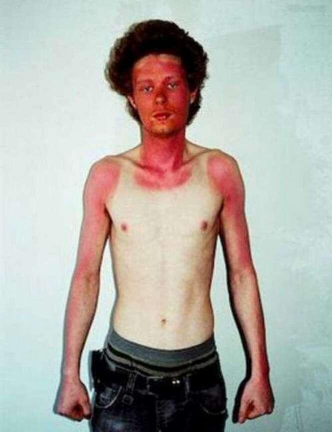 Pessoas que se esqueceram de que certas marcas de sol podem ser constrangedora