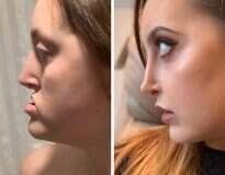 20 Pessoas que mudaram detalhes no rosto e ficaram com uma aparência incrivelmente melhor